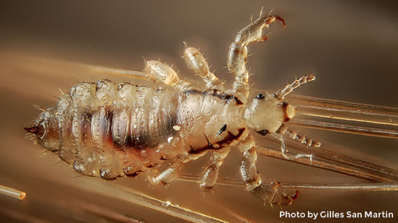 Microscopic view of a louse